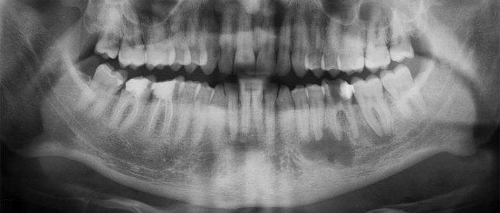 Снимок зуба химки